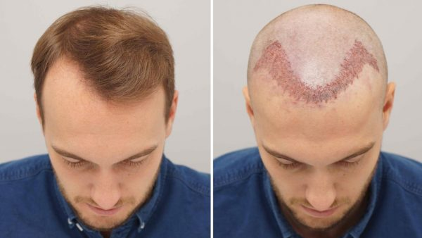 How Instantaneous Hair Transplant Therapy Will probably be Useful?